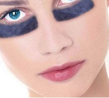 Средства от синяков и гематом на лице, под глазами от удара, после уколов. Аптечные мази, народные рецепты для детей и взрослых